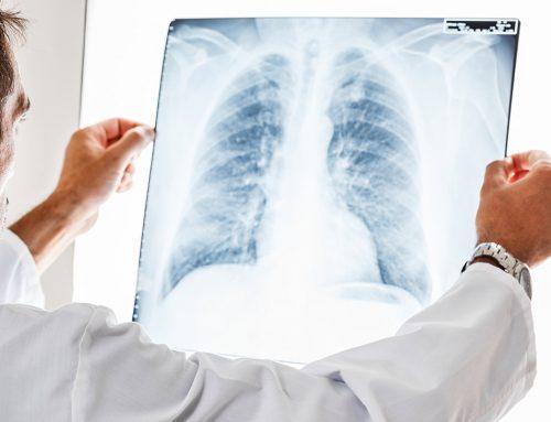 ¿Qué es un nódulo en el pulmón?