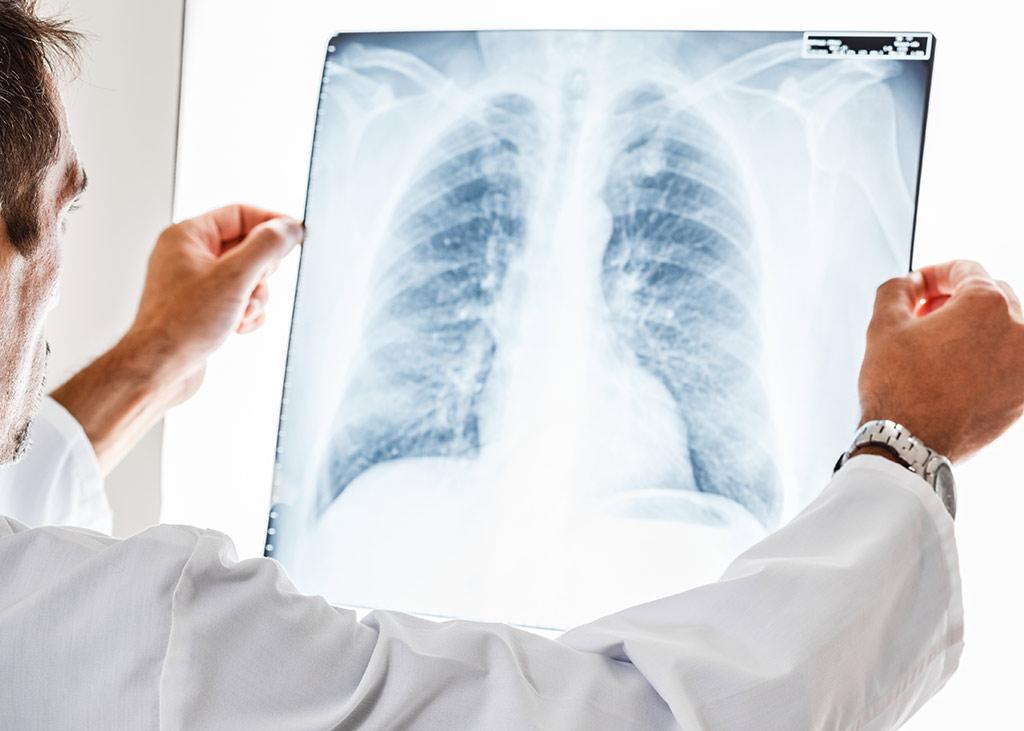 nodulo pulmonar neumoteknon