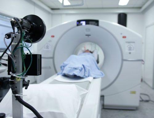 ¿Cómo se detecta un nódulo pulmonar?