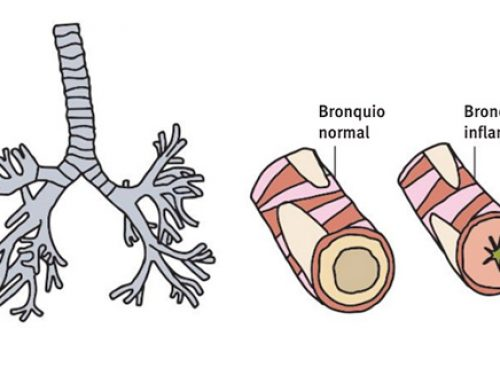 EPOC, la enfermedad del fumador